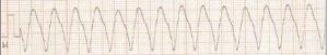 2.- taquicardia ventricular-ceisal