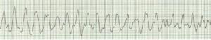 3.- fibrilacion ventricular-ceisal