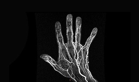 Jornada gratuita: Técnicas de vanguardia en diagnóstico por imagen